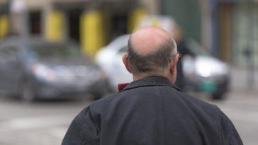 Baldness treatments